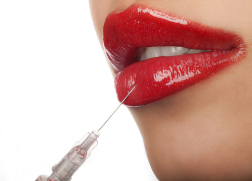 treatment of lip fillers for lip augmentation-img-blog
