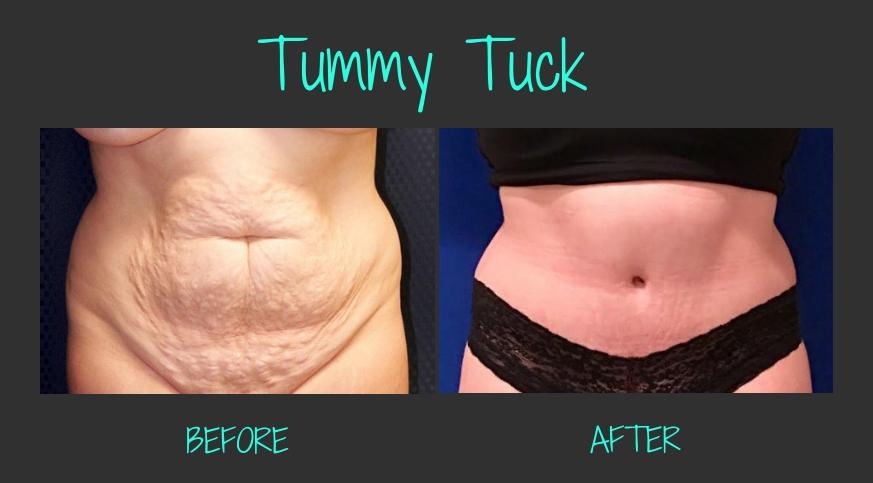 64119-50251-46313-49911-TummyTuckBA-Blog