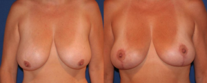 before-and-after-breast-lift-surgery