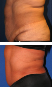 Body Contouring Before and After Photos