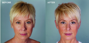 Bellafill® Before and After photo