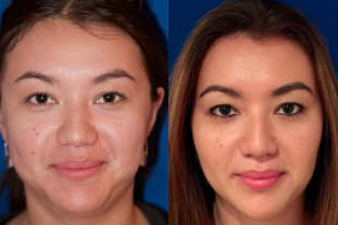 Buccal Fat Removal Patient of Dr. Taylor