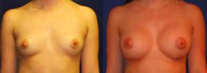 Breast Augmentation Dr Taylor