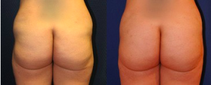 Fat Transfer Patient by Dr Taylor