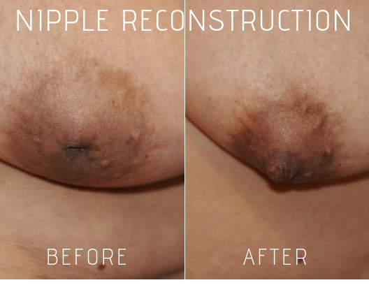 Nipple Reconstruction Before and After Photos