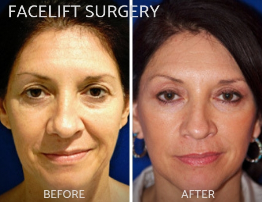 FACELIFT SURGERY-img-blog