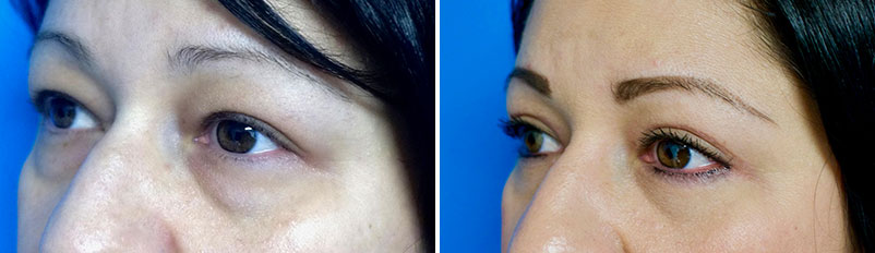 Before and after patient Eyelid Surgery side view