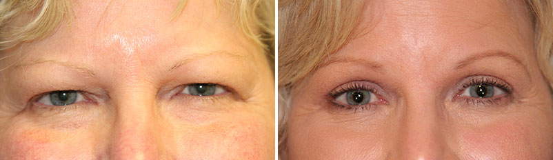 Before and after patient Eyelid Surgery