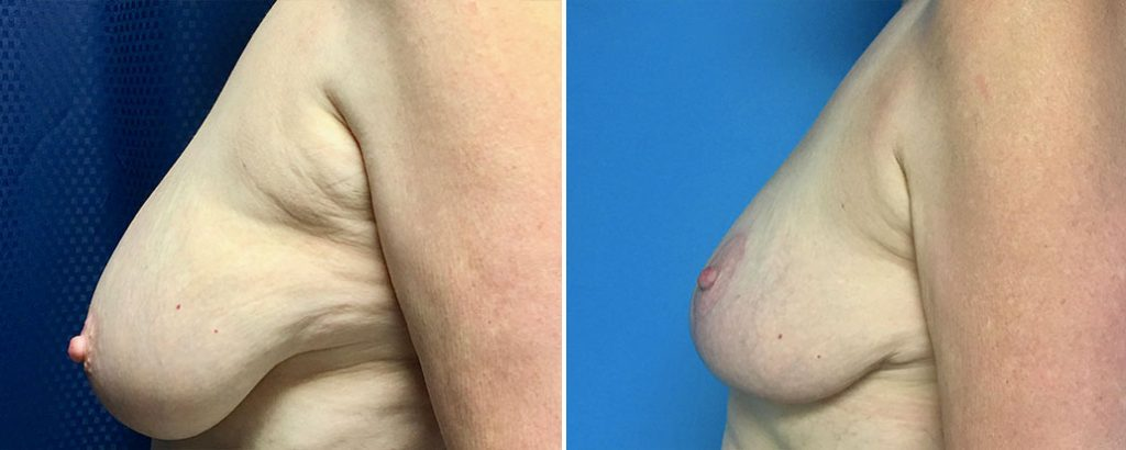 Before and after breast lift patient side view