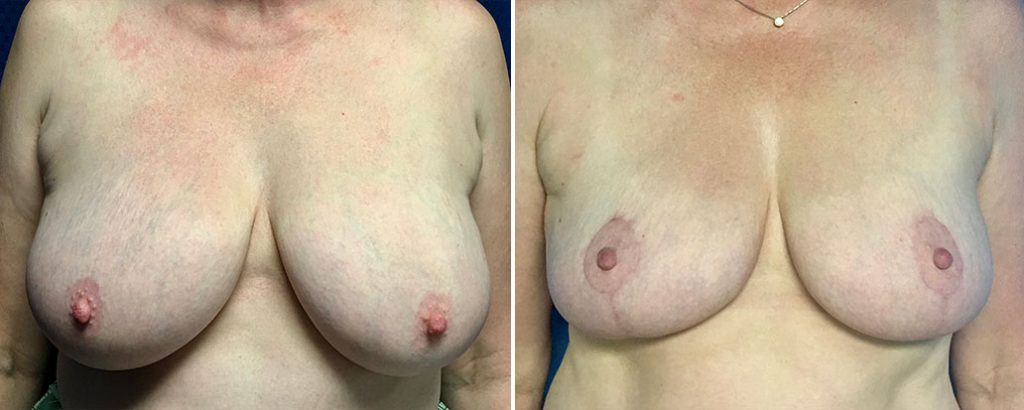 Before and after breast lift patient