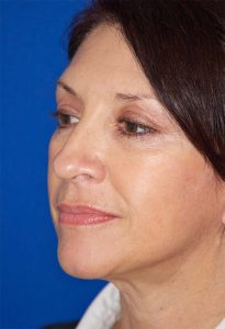 Face Lift Patient before