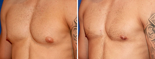 Before and after gynecomastia side view