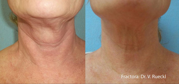 Fractora before and after Courtesy of Dr. V. Ruecki