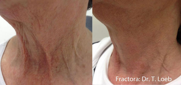 Fractora before and after Courtesy of Dr. T. Leob