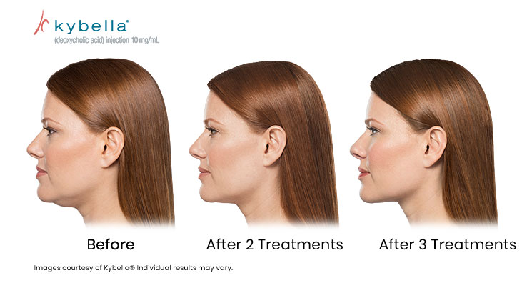 Before and after two, and three treatments of Kybella Courtesy of Kybella. Results may vary