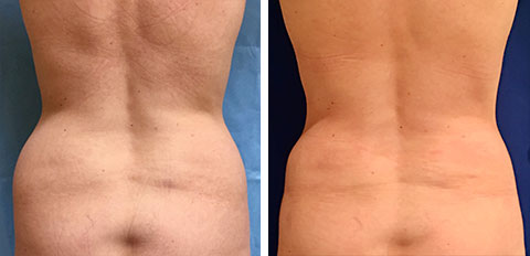 Before and After Liposuction patient view of the back