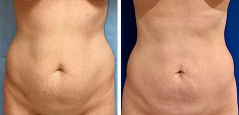 Before and After Los Angeles Liposuction