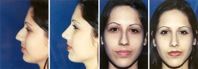 Rhinoplasty patient before and after front and side view