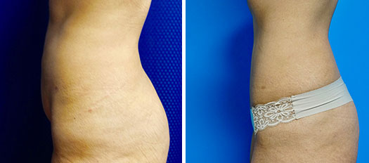 before and after tummy tuck patient side view