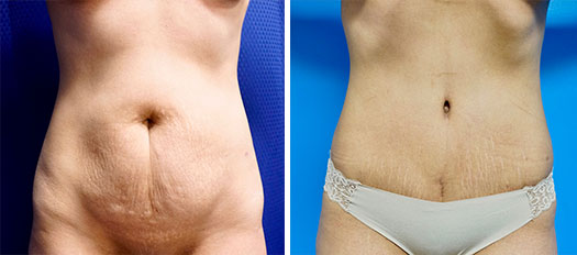 before and after tummy tuck in Los Angeles