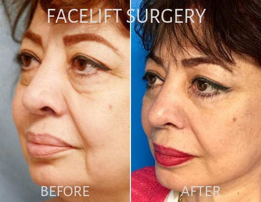 Woman before and after Facelift surgery