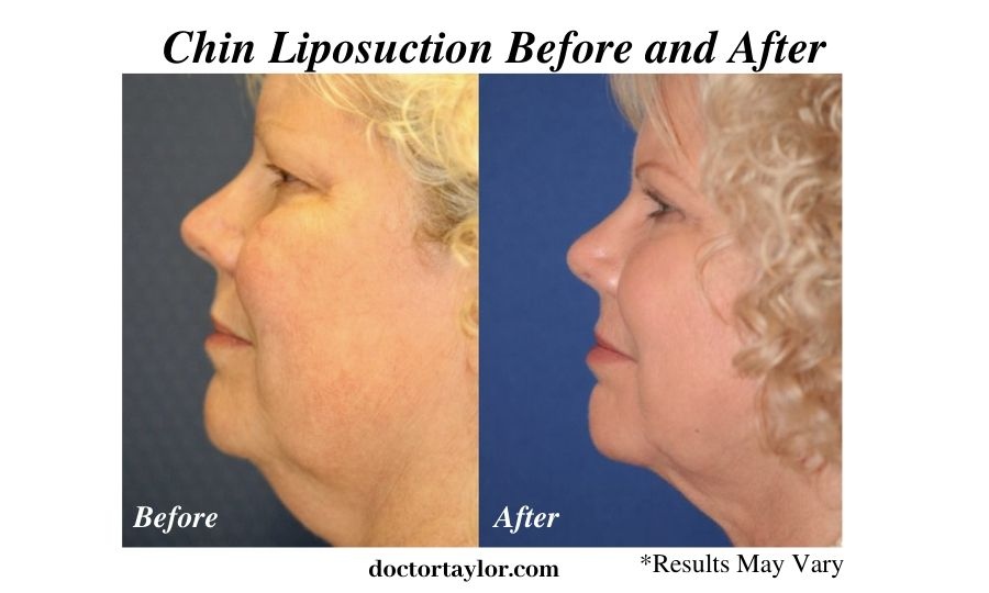 A woman before and after her chin liposuction procedure in Los Angeles. The results are after a four month time span.