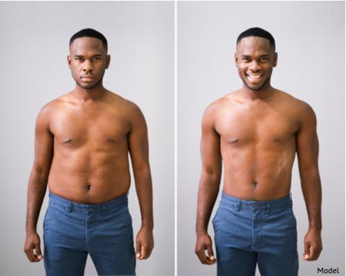 Man enjoying the benefits of tighter skin.