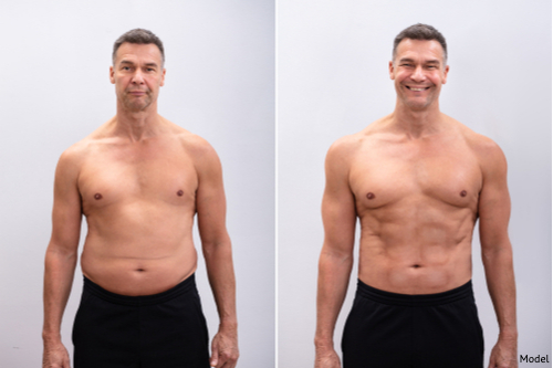 Man showing off the effects of tightened skin and reduced fat.